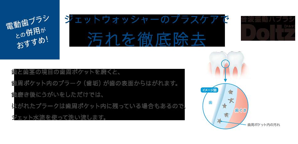 電動歯ブラシとの併用がおすすめ! ジェットウォッシャーのプラスケアで汚れを徹底除去 歯と歯茎の境目の歯周ポケットを磨くと、         歯周ポケット内のプラーク(歯垢)が歯の表面からはがれます。歯磨き後にうがいをしただけでは、はがれたプラークは歯周ポケット内に残っている場合もあるので、ジェット水流を使って洗い流します。
