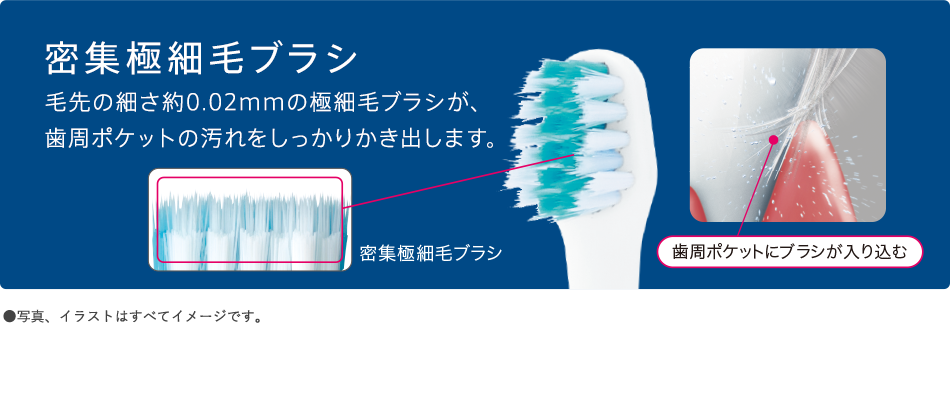 密集極細毛ブラシ 毛先の細さ約0.02mmの極細毛ブラシが、歯周ポケットの汚れをしっかりかき出します。
