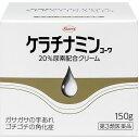 ケラチナミンコーワ 20%尿素配合クリーム(150g)