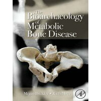 The Bioarchaeology of Metabolic Bone Disease Megan Brickley