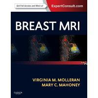 Breast MRI /PAPERBACKSHOP UK IMPORT/Virginia Molleran