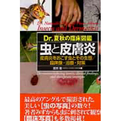 虫と皮膚炎 Dr.夏秋の臨床図鑑  /学研メディカル秀潤社/夏秋優