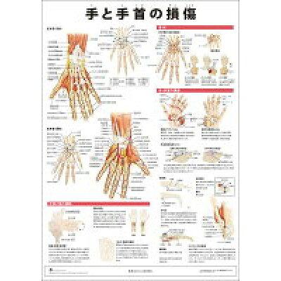 ミニポスタ-手と手首の損傷   /アプライ