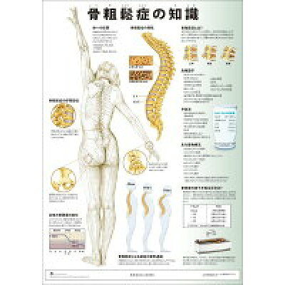 ミニポスタ-骨粗鬆症の知識   /アプライ