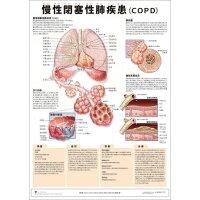 ミニポスタ-慢性閉塞性肺疾患(COPD)   /アプライ